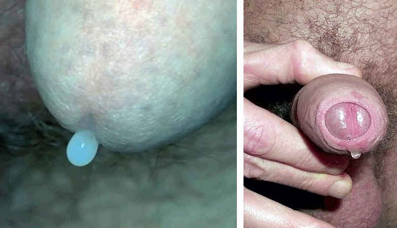 syfilis wiki sex i Haderslev
